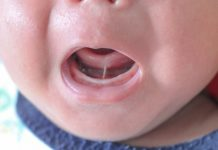 tongue tie in babies