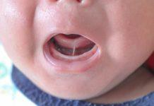 tongue tie in babies
