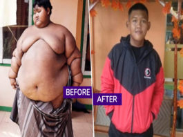 World's thickest Kid Loss 108 KG Weight In 4 Years